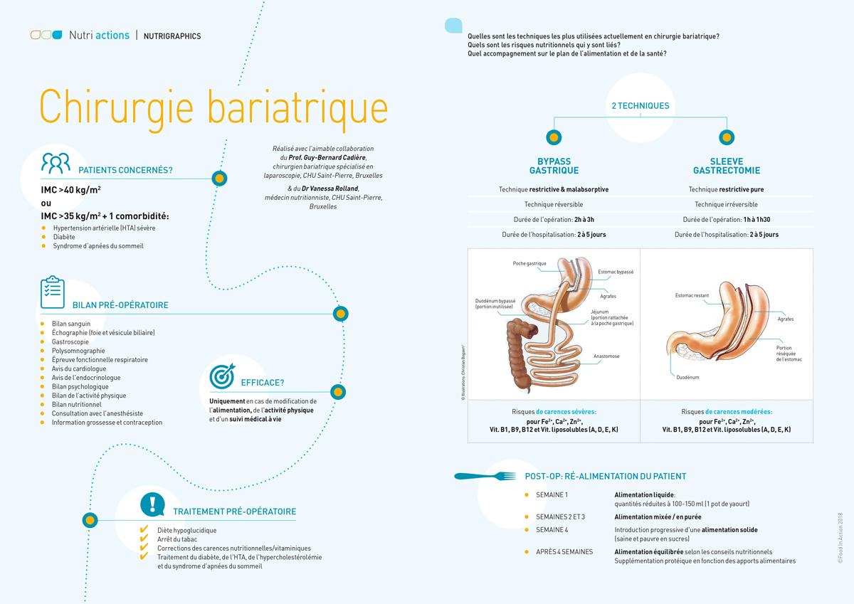 nutrigraphics-chirurgie-bariatrique-1